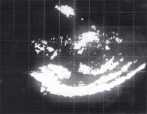 First echogram (1962)