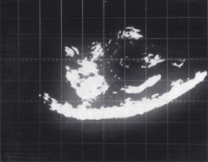 Early echogram