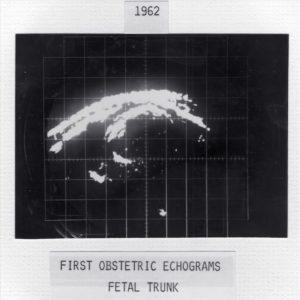Early echogram (1962)