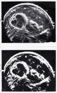 Normal fetal chest