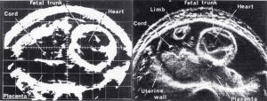 Fetal heart, bistable/greyscale comparison