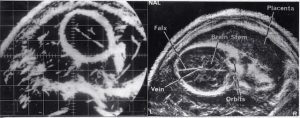 Fetal head, bistable/greyscale comparison