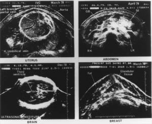 Ausonics Octoson images (1978-79)