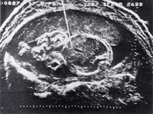 Early Doppler flow measurement (1978)