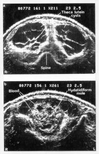 Ausonics Octoson images
