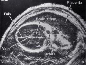 Normal fetal brain (1972)