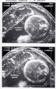 Placental avillous spaces at 41 wks (1978)
