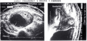 5 week pregnancy with fibroids (1978)