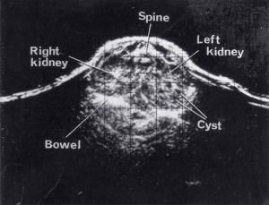 Scans - Paediatric