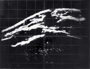 Large carcinoma (1967)