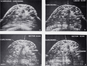 Scirrhous carcinoma - comparison of (a) compound, (b) linear, (c) and (d) sector scans (1972)