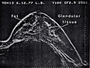 Normal breast (1977)
