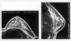 Ausonics Octoson images (1977)