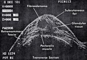 Fibroadenoma (1981)