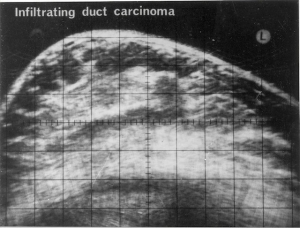 Infiltrating duct carcinoma