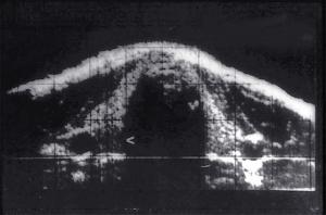8 mm diameter parathyroid adenoma