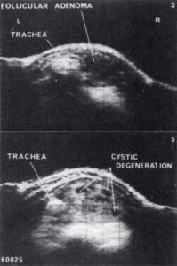 5 cm diameter degenerating follicular adenoma