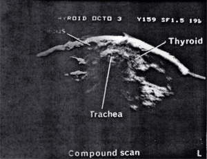 Scans - Scrotum & Thyroid