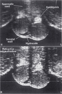 Compound and simple scan of normal testes
