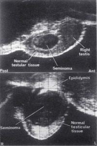 Top: 3 x 1.5 cm seminoma Bottom: 4 x 3.5 cm seminoma