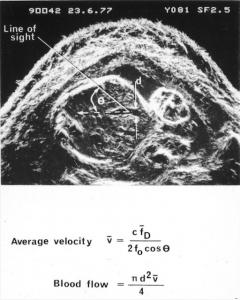First umbilical vein flow measurement (1977)