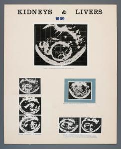 014_kidney_liver_1969