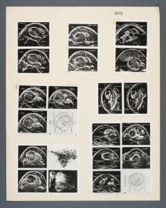 016_obstetrics_1973