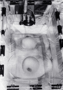 Mk I breast scanner, detail of new coupling technique, Royal North Shore Hospital (1968)