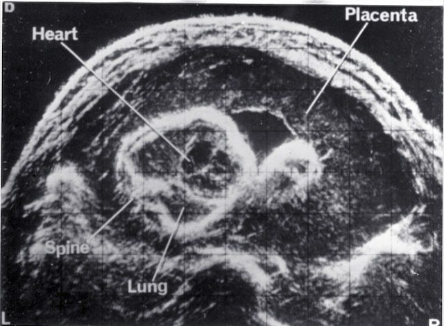 Scan - Obstetric and General