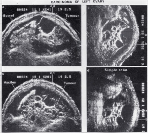 Carcinoma of left ovary (1980?)