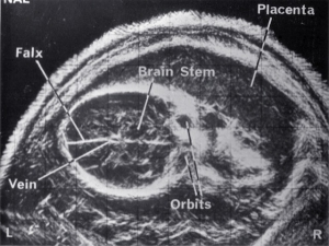 Normal fetal brain (1972)