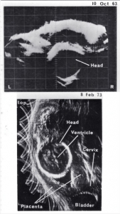 Normal fetal head (1963 and 1973)