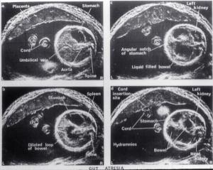 Fetal gut atresia (1974)