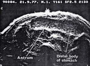 UI Octoson fluid filled stomach as window to pancreas (1977)