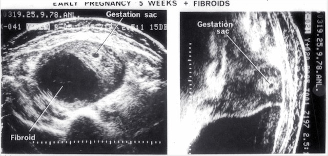 5 week pregnancy with fibroids (1978) - Australasian Society for