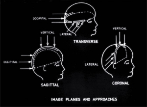 Scan planes commonly used in babies' heads