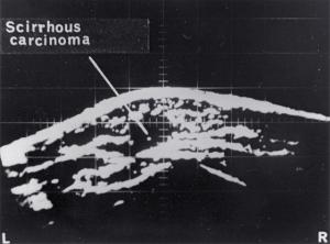Scirrhous carcinoma