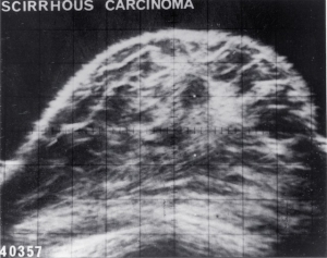 8 mm carcinoma with low level echo content (1972)