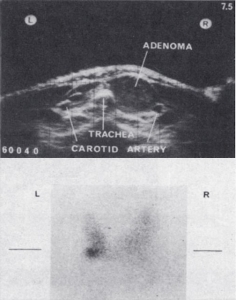 Adenoma and technetium scan